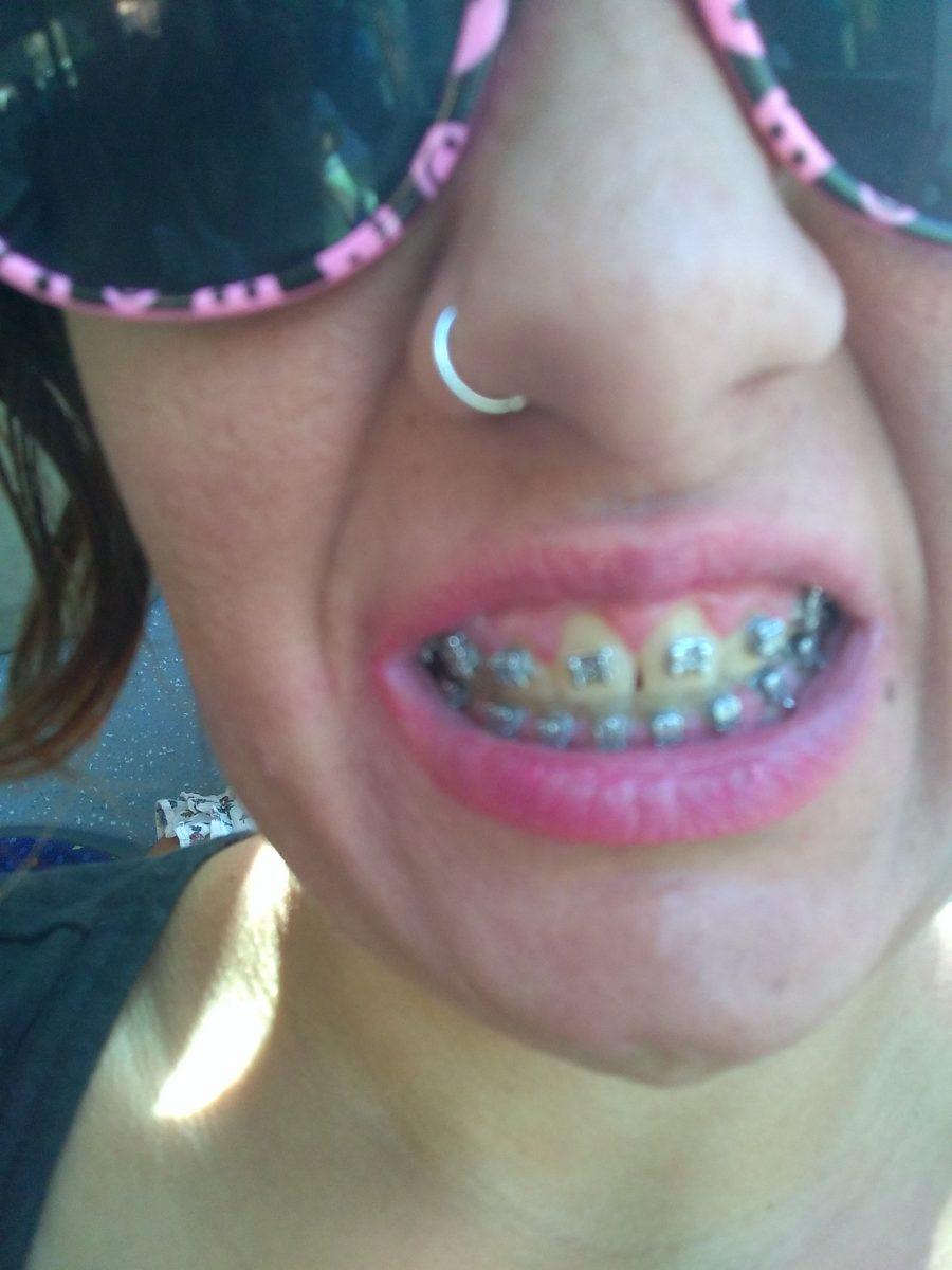 que puedo hacer si tengo un problema de gingivitis