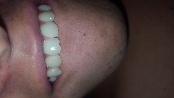Utilice de mal forma mis dientes delanteros y me astille uno