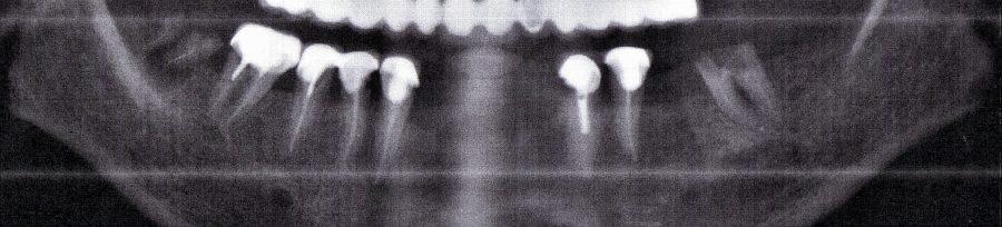 implantes maxilar inferior