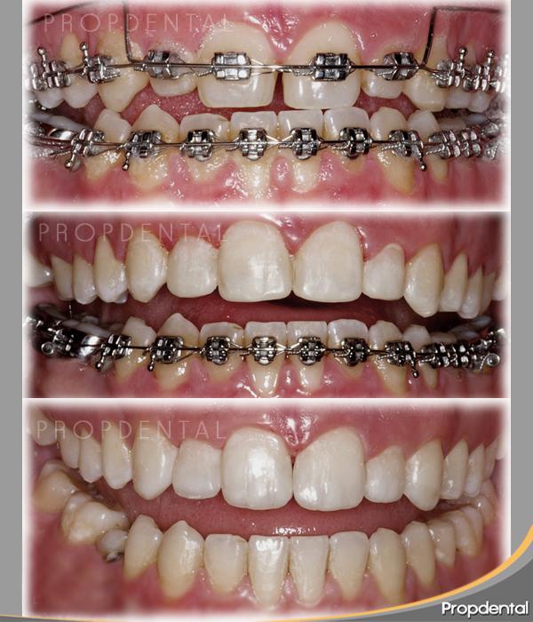 brackets metalicos de ortodoncia