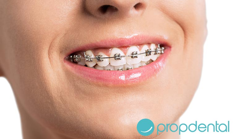 ortodoncia los brackets metalicos
