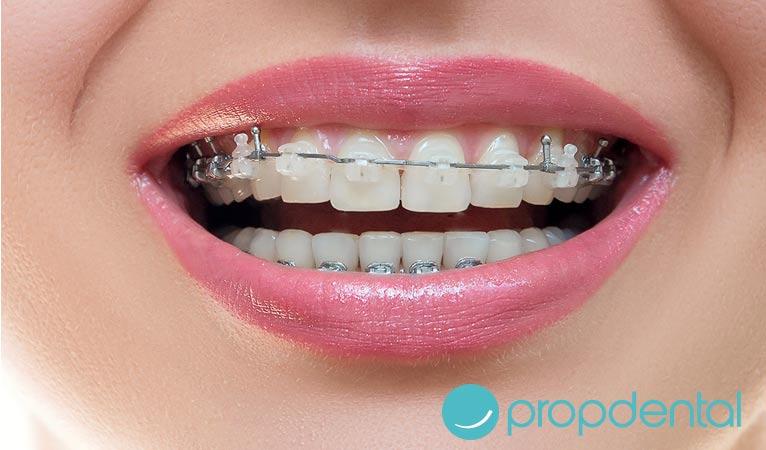 pautas seguir despues la ortodoncia