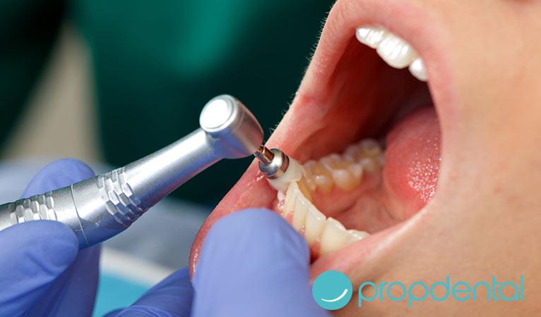 por que es importante una limpieza dental profesional