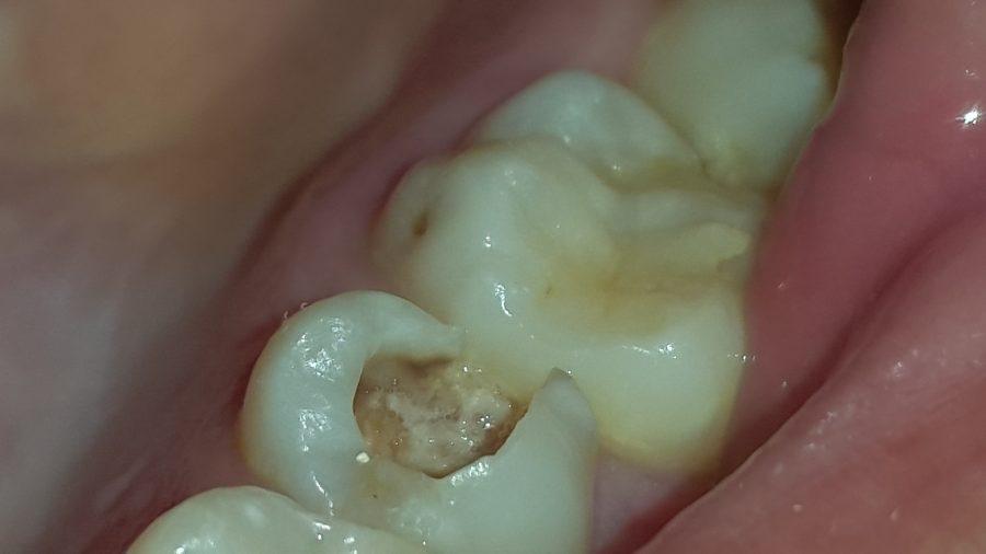 ¿Es necesario extraer el diente?