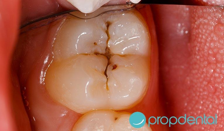caries dental la patologia mas comun los ninos