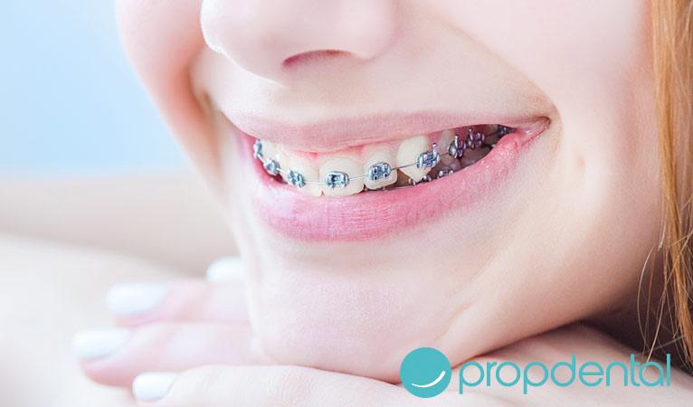 claves de la ortodoncia en niños
