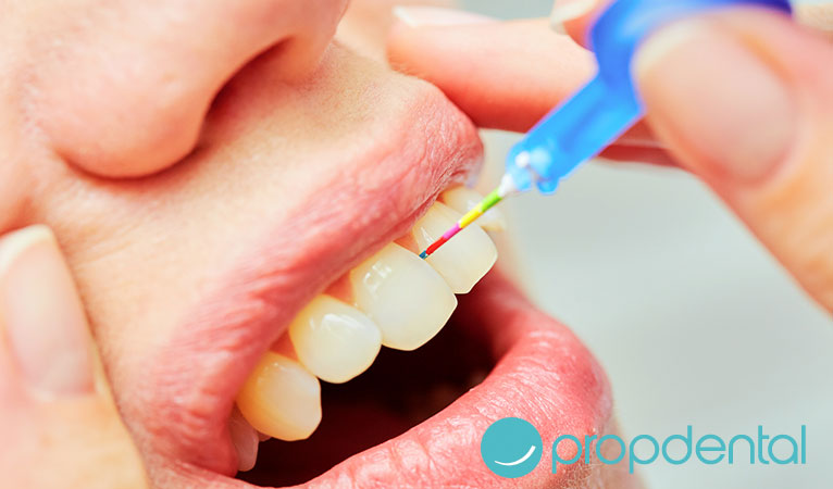 higiene oral papel del cepillo interproximal