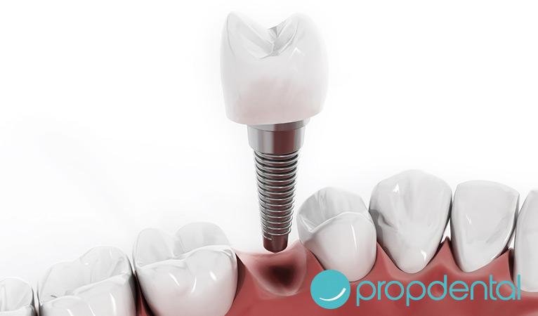 implantes dentales en un dia es posible