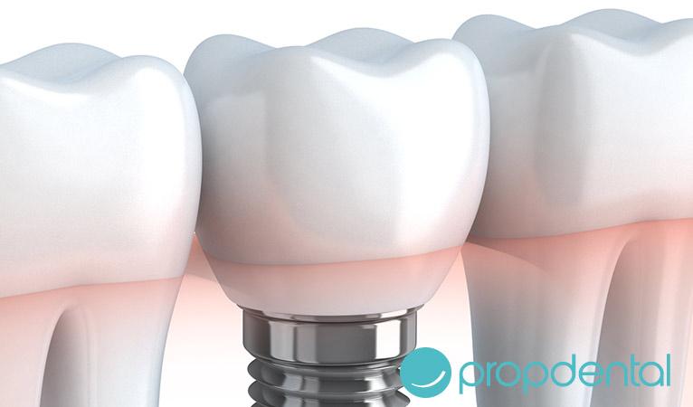 los implantes dentales duran siempre
