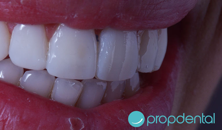los mitos las carillas dentales