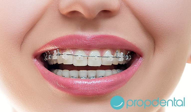 manten los resultados la ortodoncia gracias los retenedores