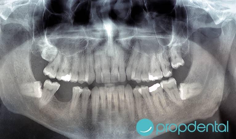 radiografia dental peligro embarazadas