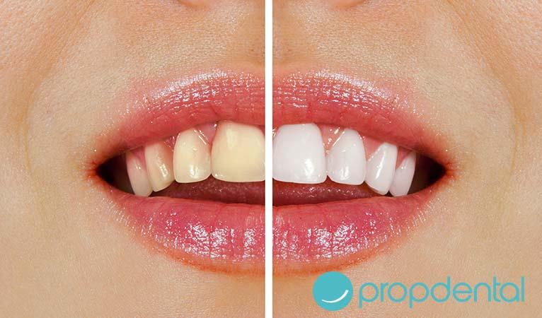 blanqueamiento dental: es efectivo puede alargarse la duración del tratamiento