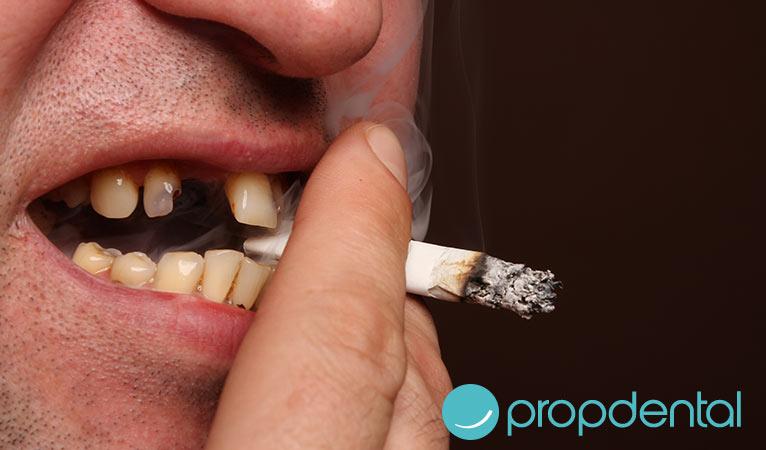 Cáncer oral: ¿Qué factores se consideran de riesgo?