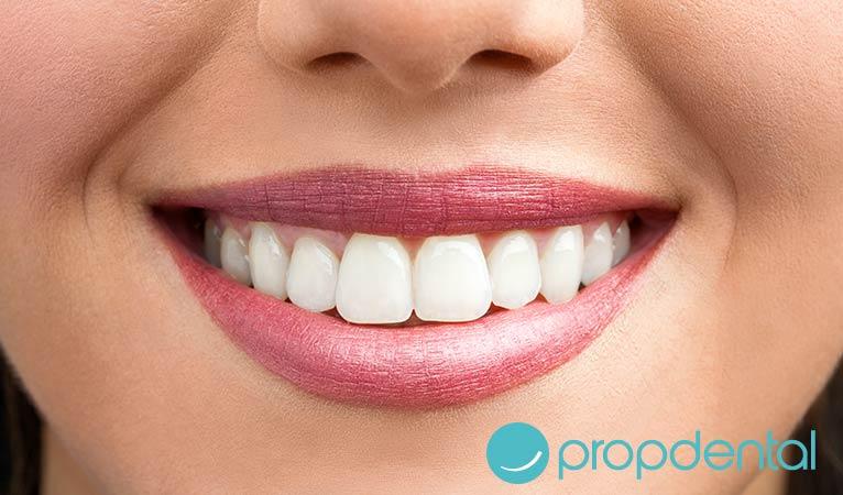 carillas dentales desmintiendo mitos