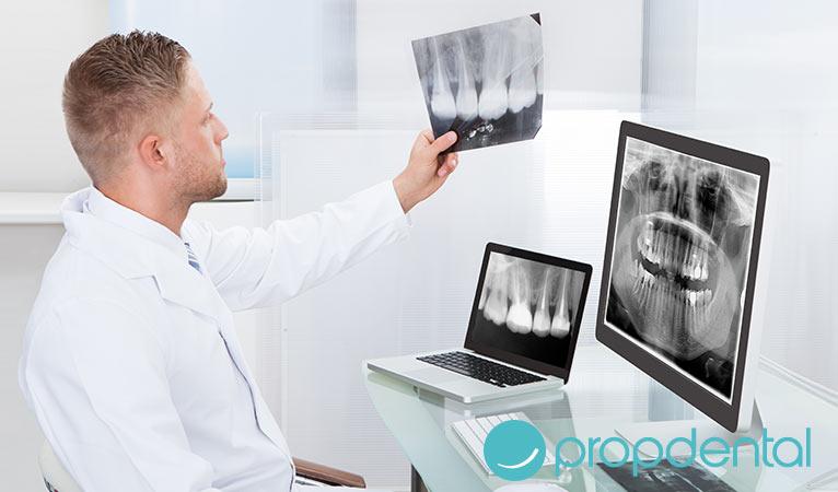 cuándo es necesaria una radiografía dental