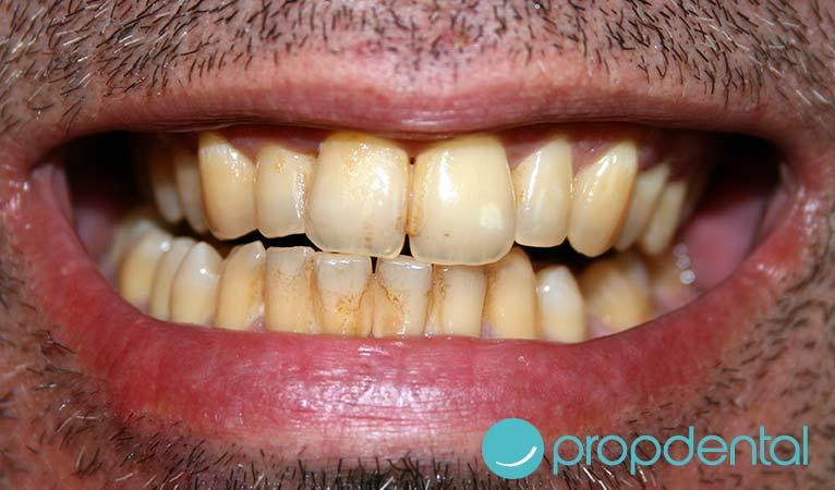 ¿Es posible evitar los dientes manchados?