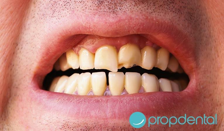 ¿Qué debemos hacer frente a un traumatismo dental?