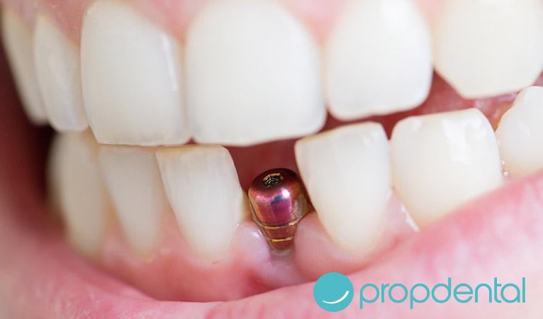 implantes dentales qué es la osteointegración