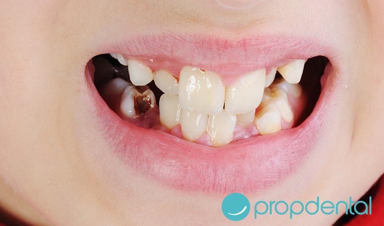 infecciones orales más habituales cuáles son