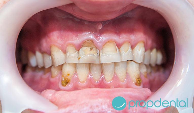 qué es la abrasión dental y cómo evitarla