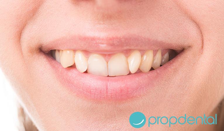 ¿Por qué tengo los dientes torcidos?