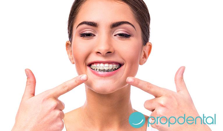ortodoncia adultos tipos brackets estéticos