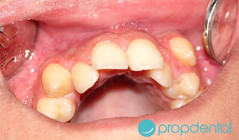 ortodoncia qué es el apiñamiento dental