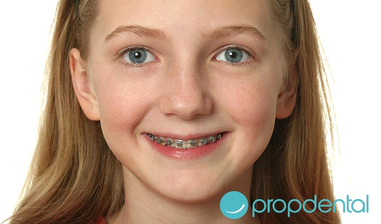 ortodoncia en niños mejor llevar brackets