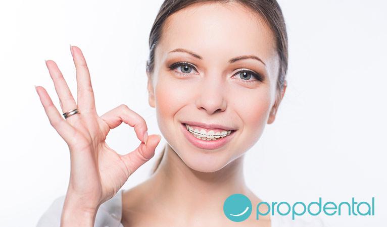 Ortodoncia: ¿Necesito brackets o me basta con carillas?