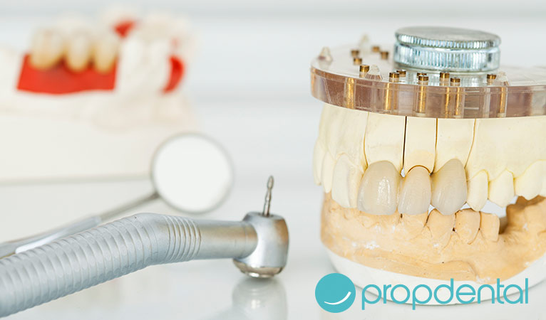 restauración dental tratamientos más efectivos
