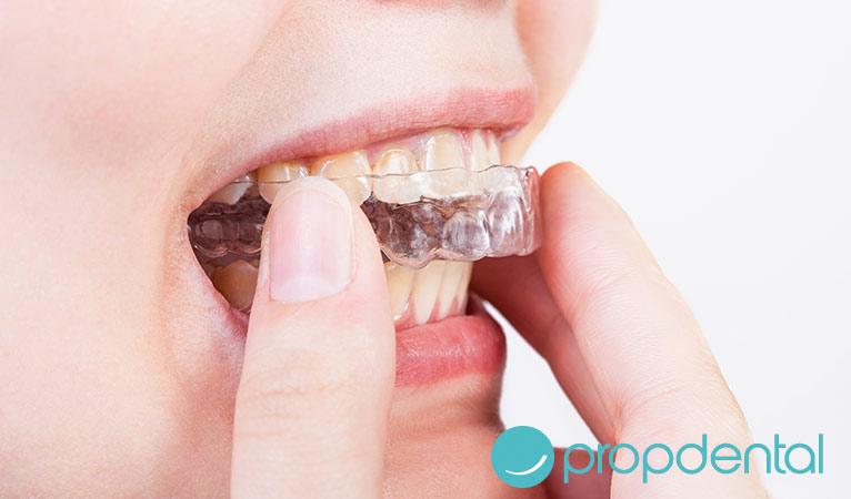 Retenedores orales: mantén tu sonrisa en su sitio