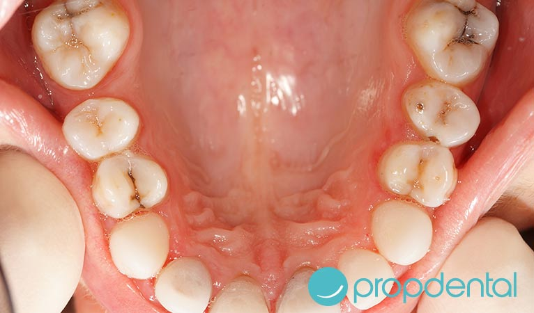 ¿Sabes cuáles son los síntomas de la caries dental?