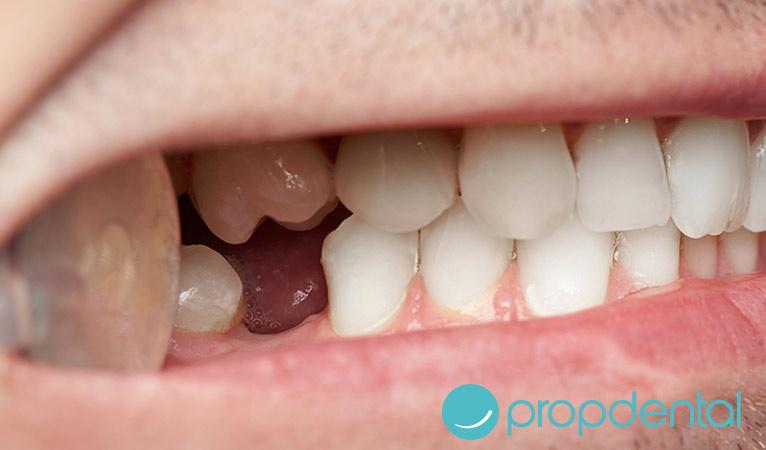 salud oral por qué perdemos los dientes