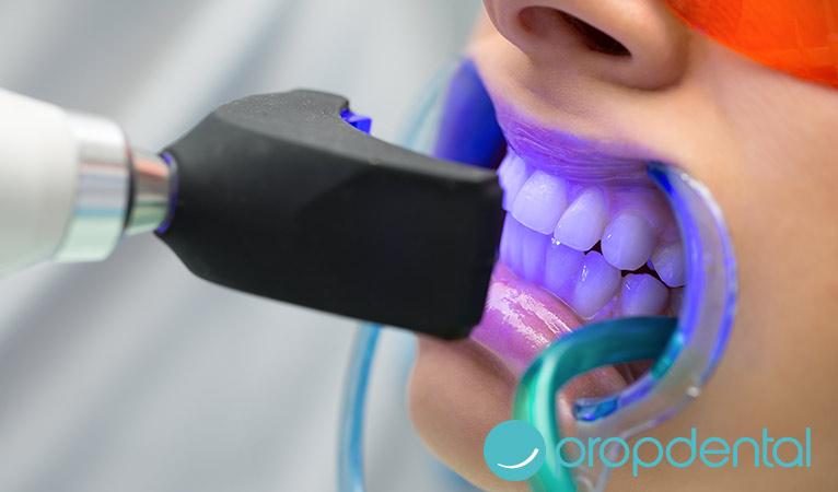 ¿Vas a realizarte un blanqueamiento dental? Entonces evita lo siguiente