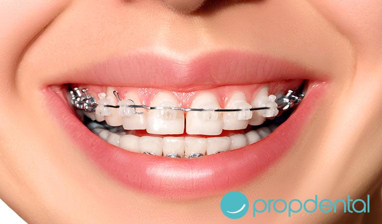 ventajas y desventajas de la ortodoncia estética