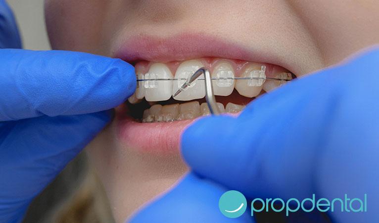 ¿Qué ventajas nos ofrece la ortodoncia de zafiro?