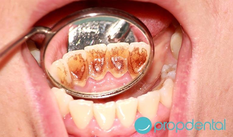 ¿Lo sabes todo sobre el biofilm dental?