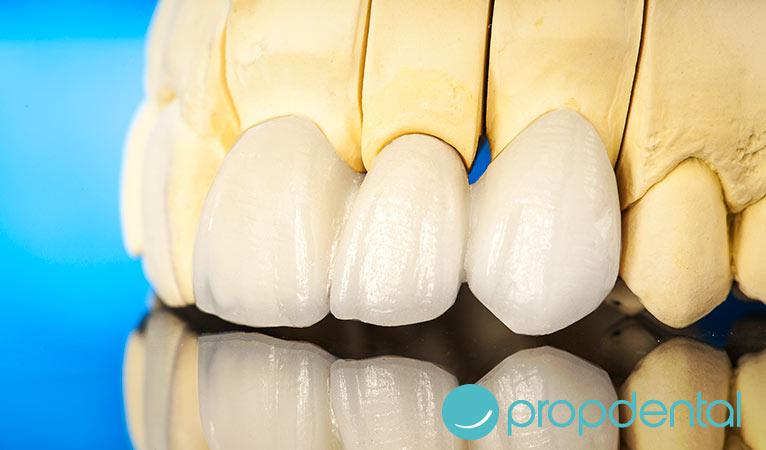 ¿Necesito carillas o coronas dentales?