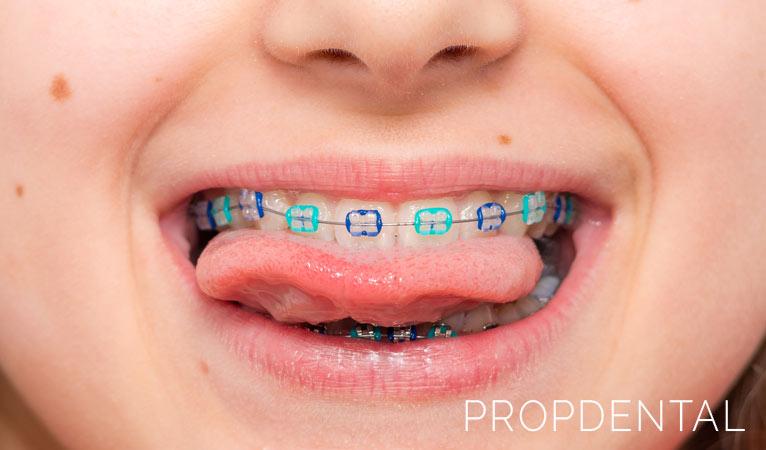 Ortodoncia: ¿a partir de qué edad es conveniente en niños?