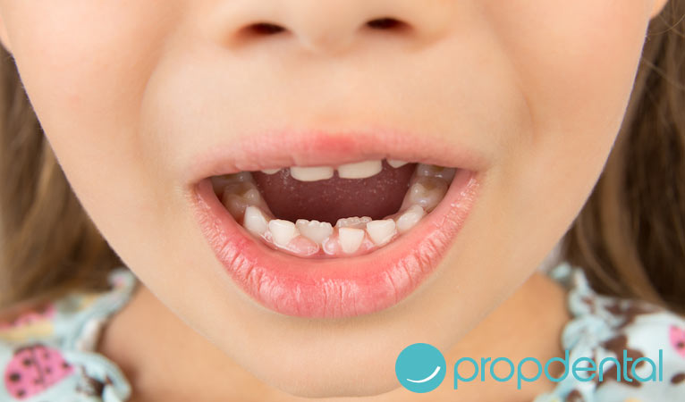 por que son tan importantes los dientes de leche