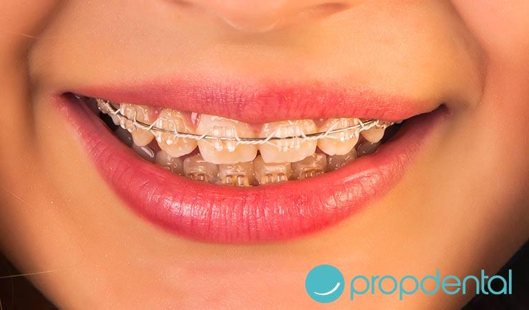 un aparato de ortodoncia para cada sonrisa