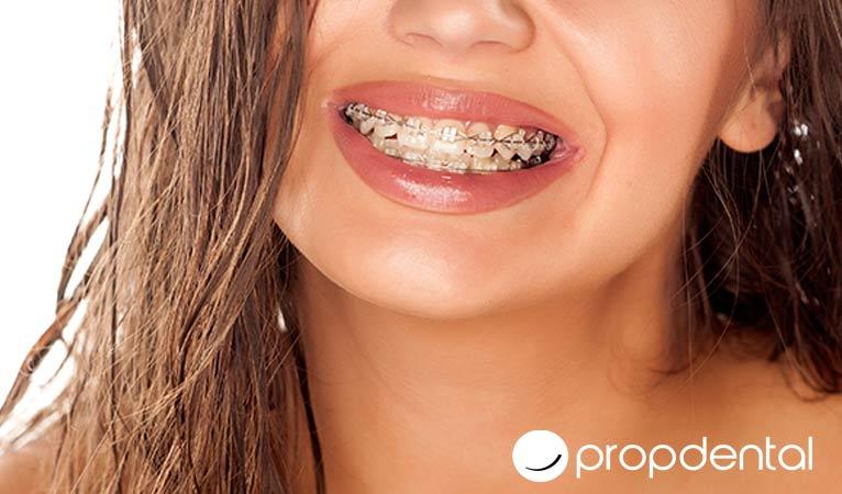 5 preguntas frecuentes sobre la ortodoncia