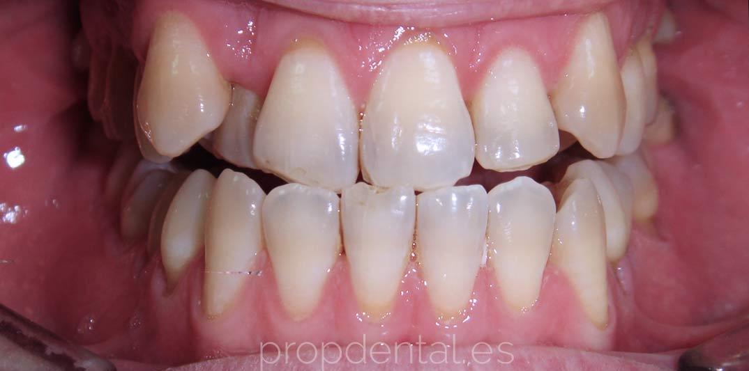 Caso Ortodocia Clase III con protrusión mandibular