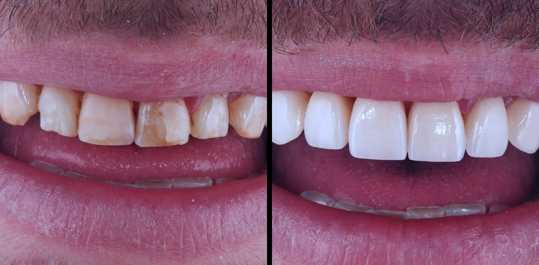 carillas composite sonrisa mejorada