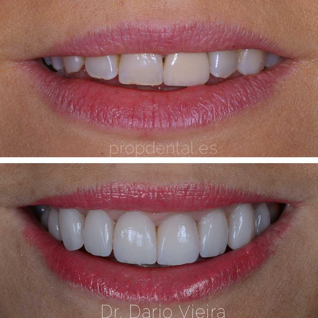 caso alargar dientes