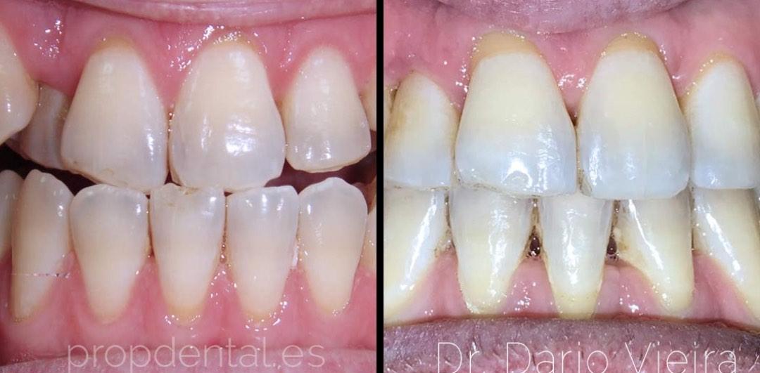 caso-ortodocia-clase-3-con-protrusión-mandibular
