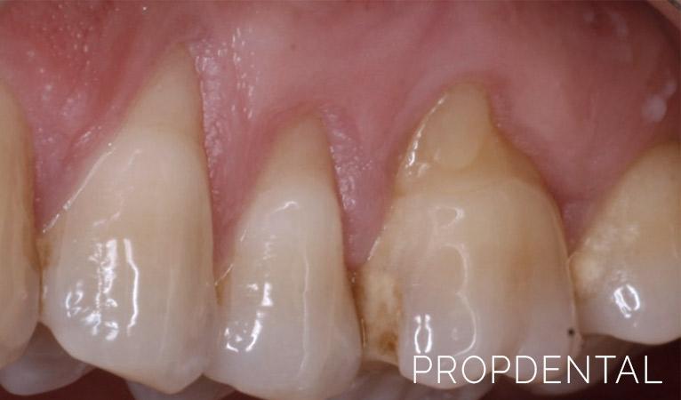 como saber si tengo gingivitis y periodontitis
