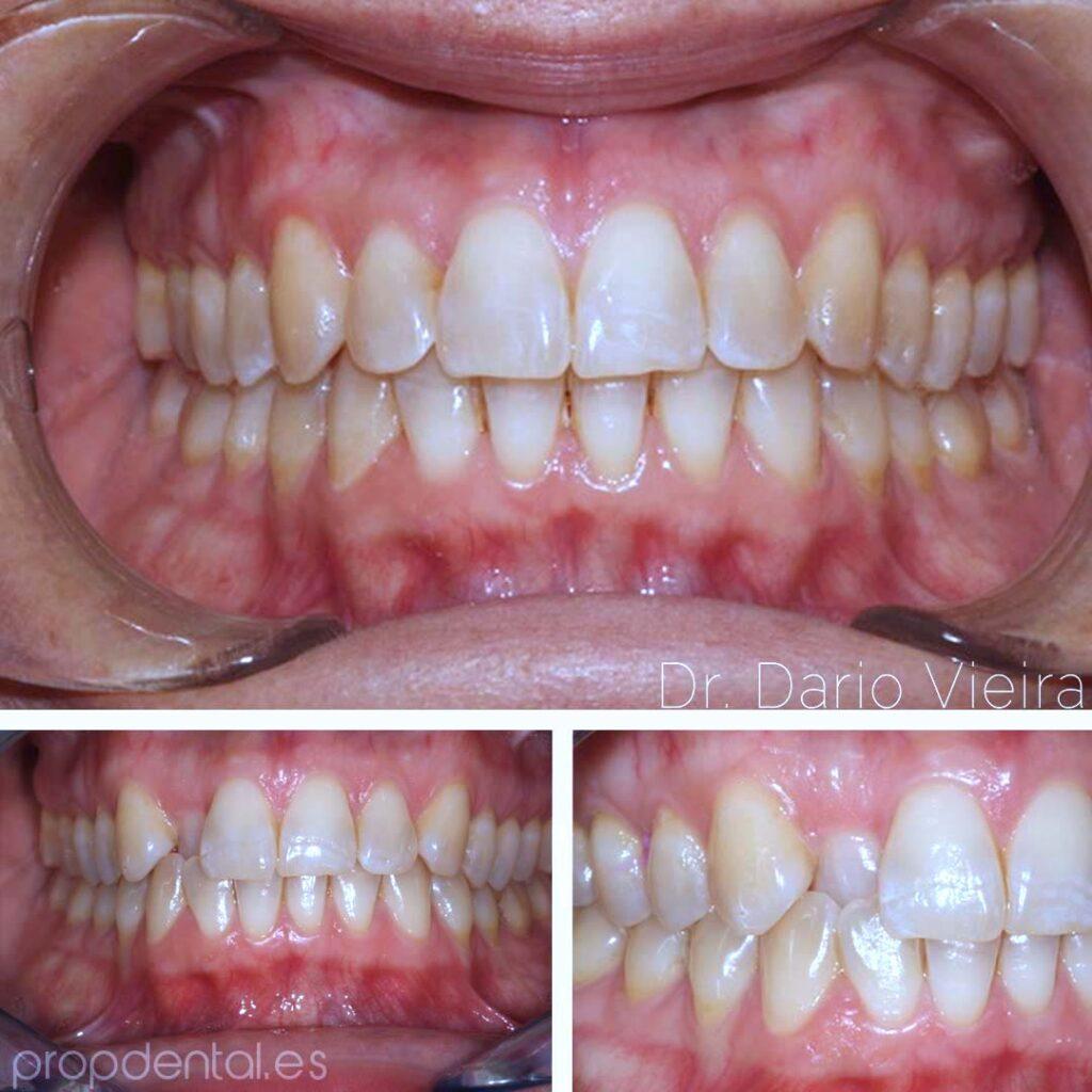 correción-nivelación-diente-12