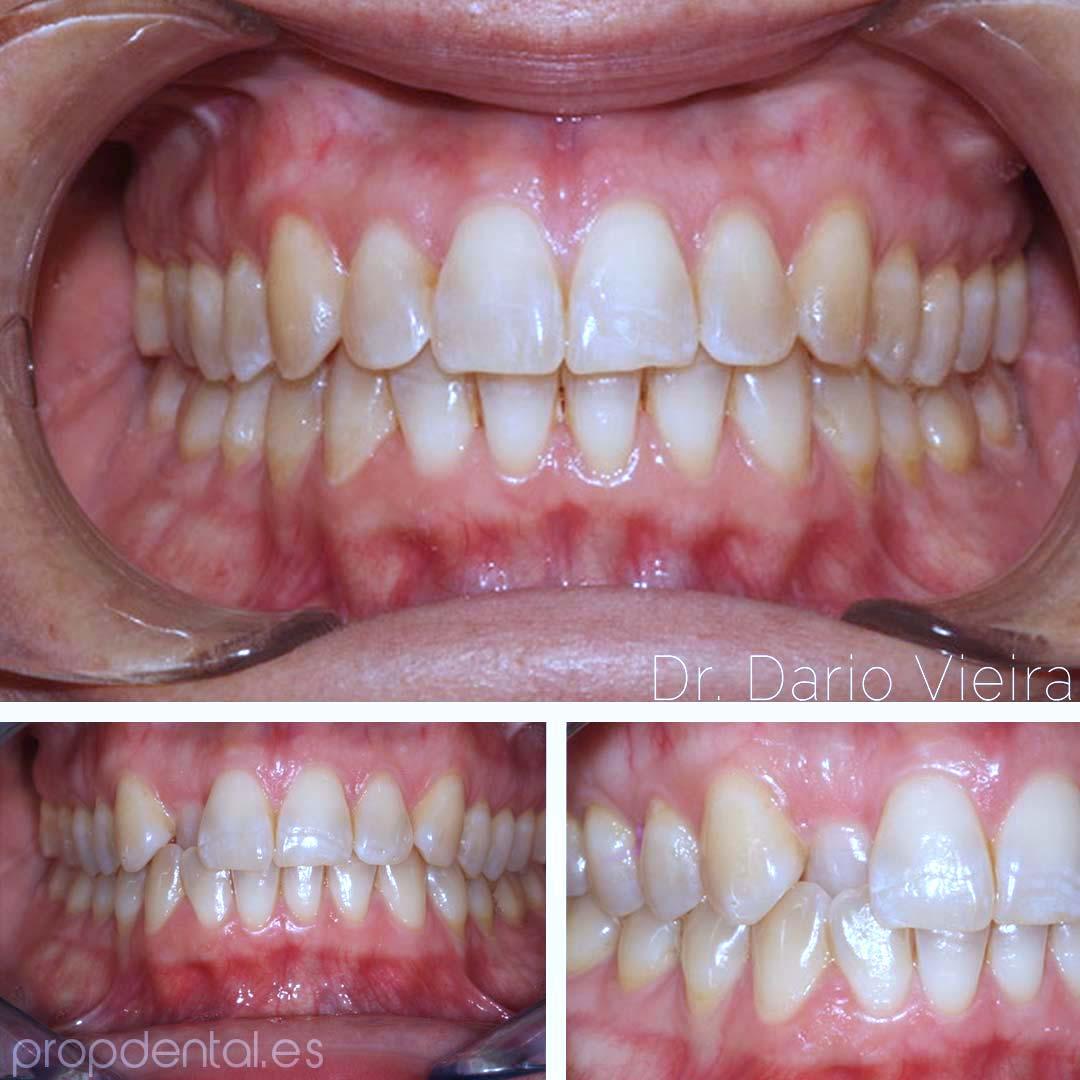 correcion nivelación diente 12